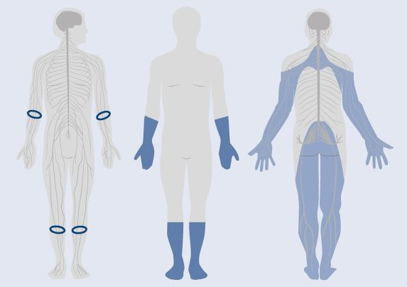 Obr | Distribúcia senzitívnych príznakov u pacientov s diabetickou polyneuropatiou. Upravené podľa [9]