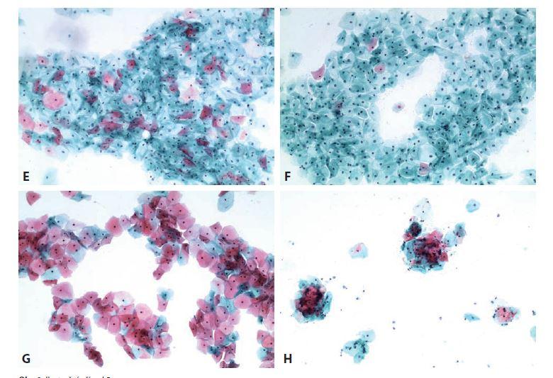 Obr. 8. Ilustrační případ 5.<br> E: Adultní cytogram. Převažují intermediární buňky. Začínají se objevovat známky gestagenní opozice.<br> F: První cytogram obnovené menstruace (s gestagenní medikací). Převažují intermediární buňky – obraz odpovídá udanému 22. dni cyklu.<br> G: 14. den medikovaného cyklu. Ovulační cytogram s převahou eozinofilních superfi ciálních buněk.<br> H: 26. den obnoveného cyklu bez nutnosti další hormonální léčby.