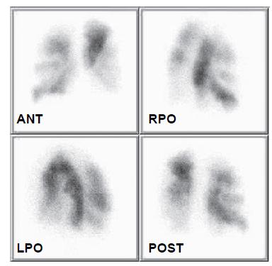 Scintigrafie plicní perfuze 5. 3. 2008. Jasně jsou patrné segmentové defekty perfuze v obou plicních křídlech.