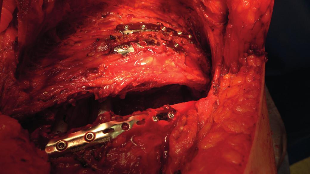Peroperační snímek provedené osteosyntézy žeber inovovanými dlahami Judetova typu před uzávěrem torakotomie