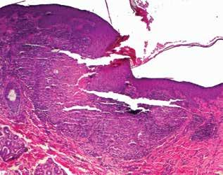Transepitheliální eliminace nekrotických hmot (HE 40x)