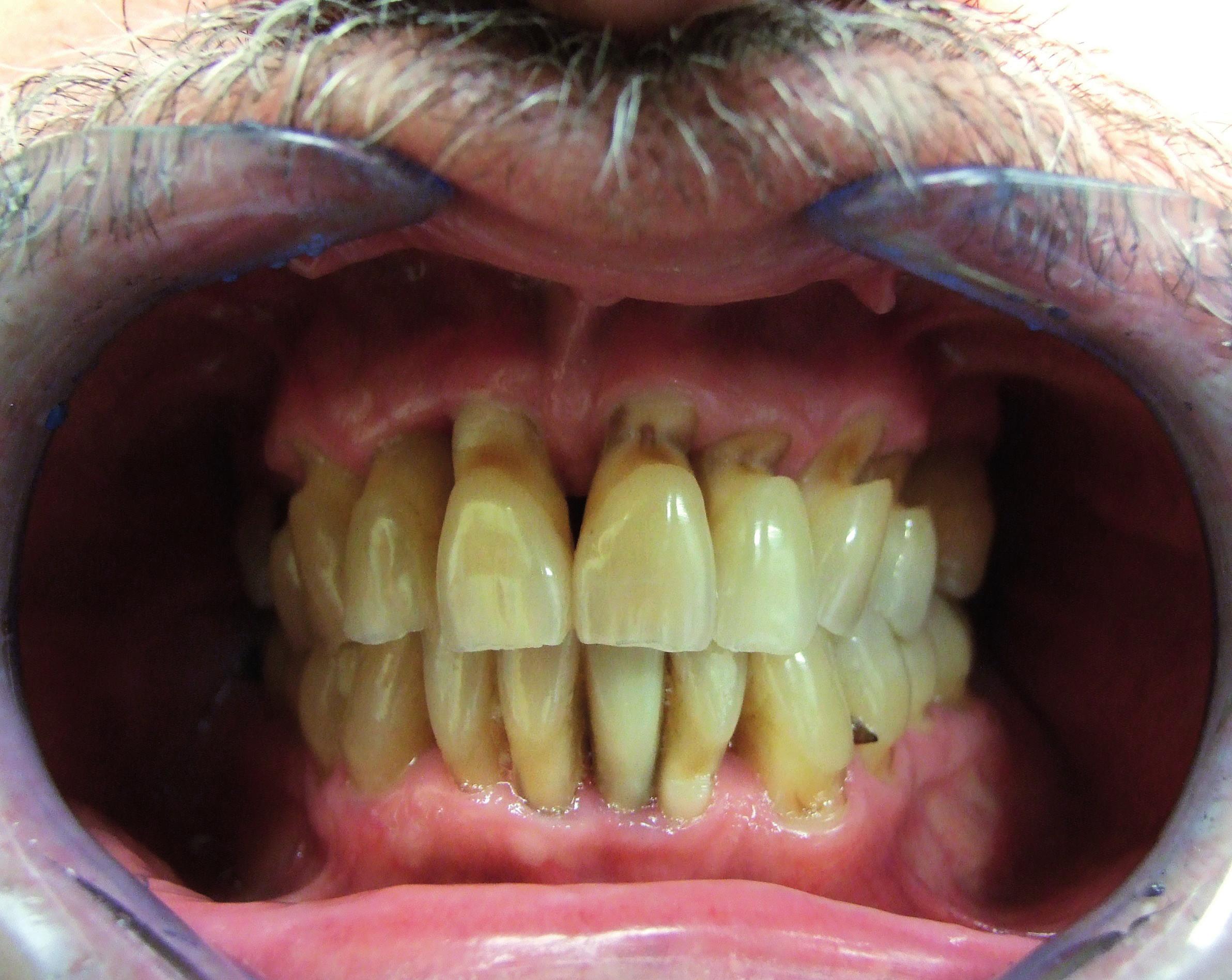 Pokročilé abrazivní defekty cervikální oblasti horních a některých dolních zubů v důsledku traumatizující techniky čištění zubů
