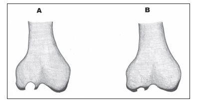 Pozdní (A) a časné (B) stádium osteochondrálního defektu.