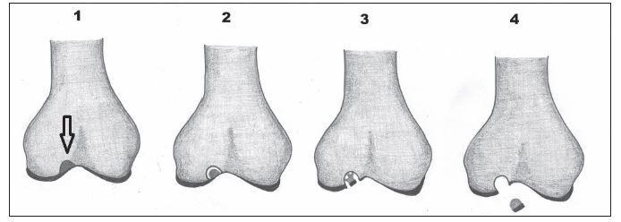 Stádia disekující osteochondritidy 1–4. 1 – vyznačená stabilní léze v kosti, 2 – naznačené odloučení fragmentu v kosti, 3 – fragmentace chrupavky, 4 – dislokace fragmentu.