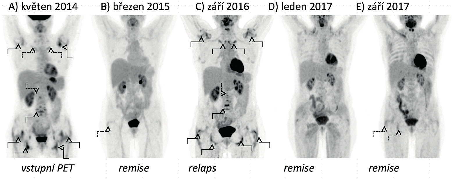 Vývoj nálezů FDG-PET/CT vyšetření u pacientky s polymyalgia rheumatica. A) Vyšetření prokazuje zvýšenou akumulaci FDG v glenohumerálních, sternoklavikulárních a kyčelních kloubech, v prostorách mezi spinózními výběžky obratlů krční a bederní páteře, v oblastech pertrochanterických a ischiogluteálních burz a kolem zevních hran stydkých kostí. B) Vyšetření prokazuje remisi onemocnění s pouze mírnou akumulací FDG v oblasti pravé pertrochanterické burzy. C) Vyšetření prokazuje relaps onemocnění s aktivní synovitidou glenohumerálních, sternoklavikulárních a kyčelních kloubů a nálezem synovitidy v interspinózních prostorách krční a bederní páteře, v pertrochanterických a ischiogluteálních burzách a s naznačenou aktivitou prepubicky. D) Vyšetření prokazuje remisi onemocnění. E) Vyšetření prokazuje remisi onemocnění s pouze mírnou akumulací FDG v oblasti pravé pertrochanterické a ischiogluteální burzy.
