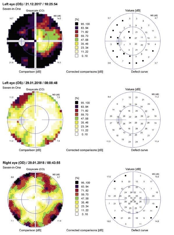 Obr. 2 a,b,c Perimeter 30º pred a po operácii, pozn: periemeter na pravom oku nebolo možné predoperačné vykonať - nízka CZO pacientky, pacientka nefixovala. Na perimetri ľavého oka vidíme výrazné zvýšenie zorného poľa v 30° 3 týždne po resekcii Rathkeho cysty.