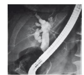 Stenóza distální části ductus choledochus s dilatací extra i intrahepatálních žlučových cest.<br> Fig. 1. Terminal common bile duct stenosis with dilatation extra and intrahepatic bile ducts.