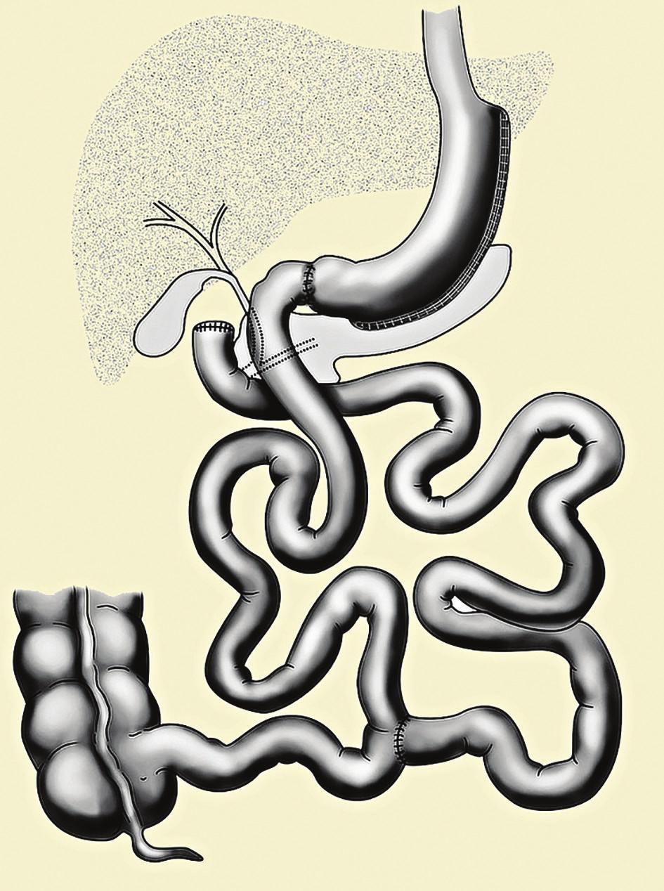 Biliopankreatická diverze typu duodenal switch<br> Fig. 1: Biliopancreatic diversion, the duodenal switch type