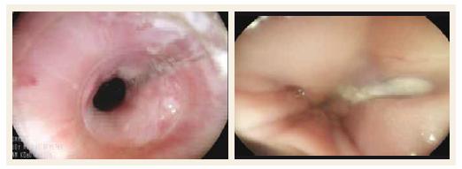 Endoskopický obraz termického poškodenia pažeráka.<br> Fig. 4. Endoscopic picture of thermal oesophageal damage.