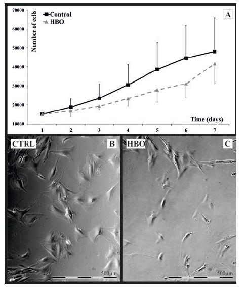 A-C. Hodnocení změn buněčné morfologie HFL1<br> A – rychlost růstu vyjádřená počtem buněk na 1 ml se mezi kontrolní a HBO fibroblasty nelišila<br> B, C – HFL1 ve fázovém kontrastu při zvětšení 60krát