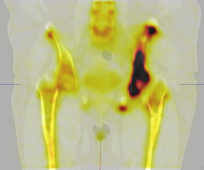 Obr. 3Bb Scintigrafie skeletu, SPECT/CT tomografické obrazy pánve. Frontální řez vedený úrovní stehenní kosti. Je patrná výrazně zvýšená akumulace v levé polovině pánve.