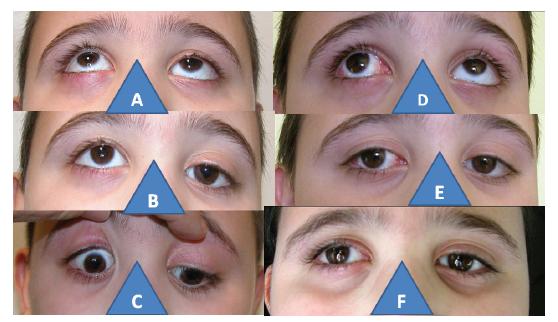 6-letý chlapec s kongenitální parézou dolního přímého svalu vpravo: zvýšení elevace vpravo (A), hypertropie vpravo (B), neschopnost deprese vpravo (C), prakticky vyrovnaná elevace po operaci s následným V-syndromem (D), prakticky paralelní postavení očí po operaci (E), nález je identický i po třech letech od operace (F)