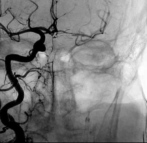 Rekanalizace arteria cerebri media vlevo<br> Fig. 2: Left middle cerebral artery recanalisation