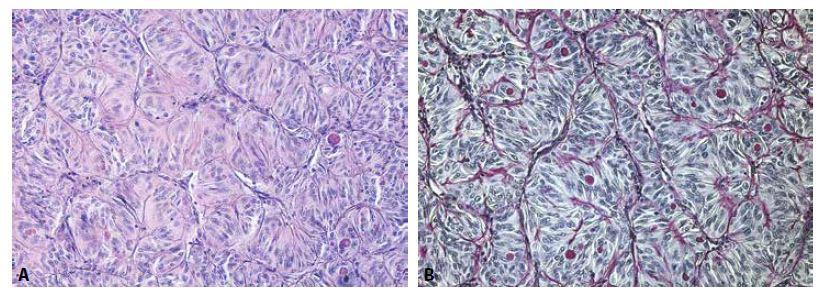 Solidně-alveolárně uspořádané protáhlé nádorové buňky s protáhlými až okrouhlými jádry a PAS pozitivními eosinofilními globulemi v cytoplazmě. (A - barvení hematoxylinem eozinem, zvětšení 200x, B - barvení PAS, zvětšení 200x).