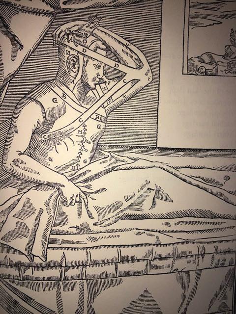 Popisný obrázek Tagliacozziho metody.