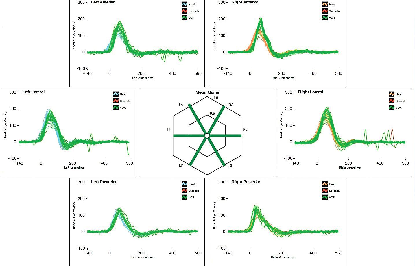 Výskyt korekčních sakád oka (znázorněny červeně) při snížené funkci pravého laterálního polokruhovitého kanálku. Hodnota gainu VOR klesá pod 0,8. Oproti druhé straně vzniká 25% asymetrie funkce VOR.