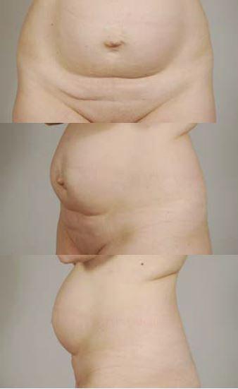 Obr. 7a 39letá pacientka s diastázou břišních svalů a pupeční kýlou (estetická indikace, kromě pupeční kýly)