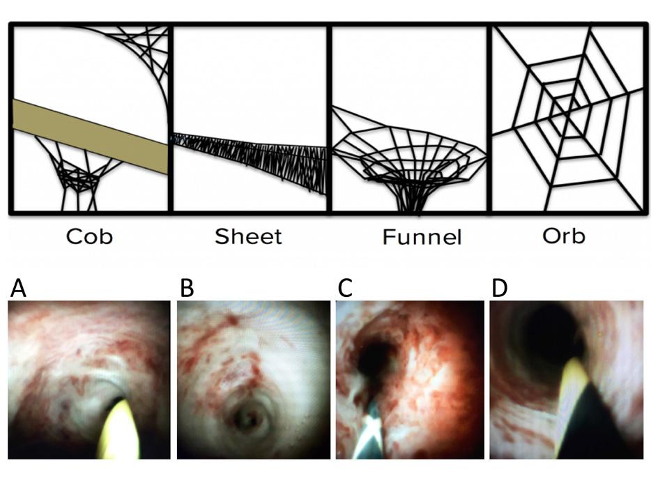 Klasifikace maligních nálezů – patologická vaskularizace: A – typ I; B – typ II; C – typ III; D – typ IV