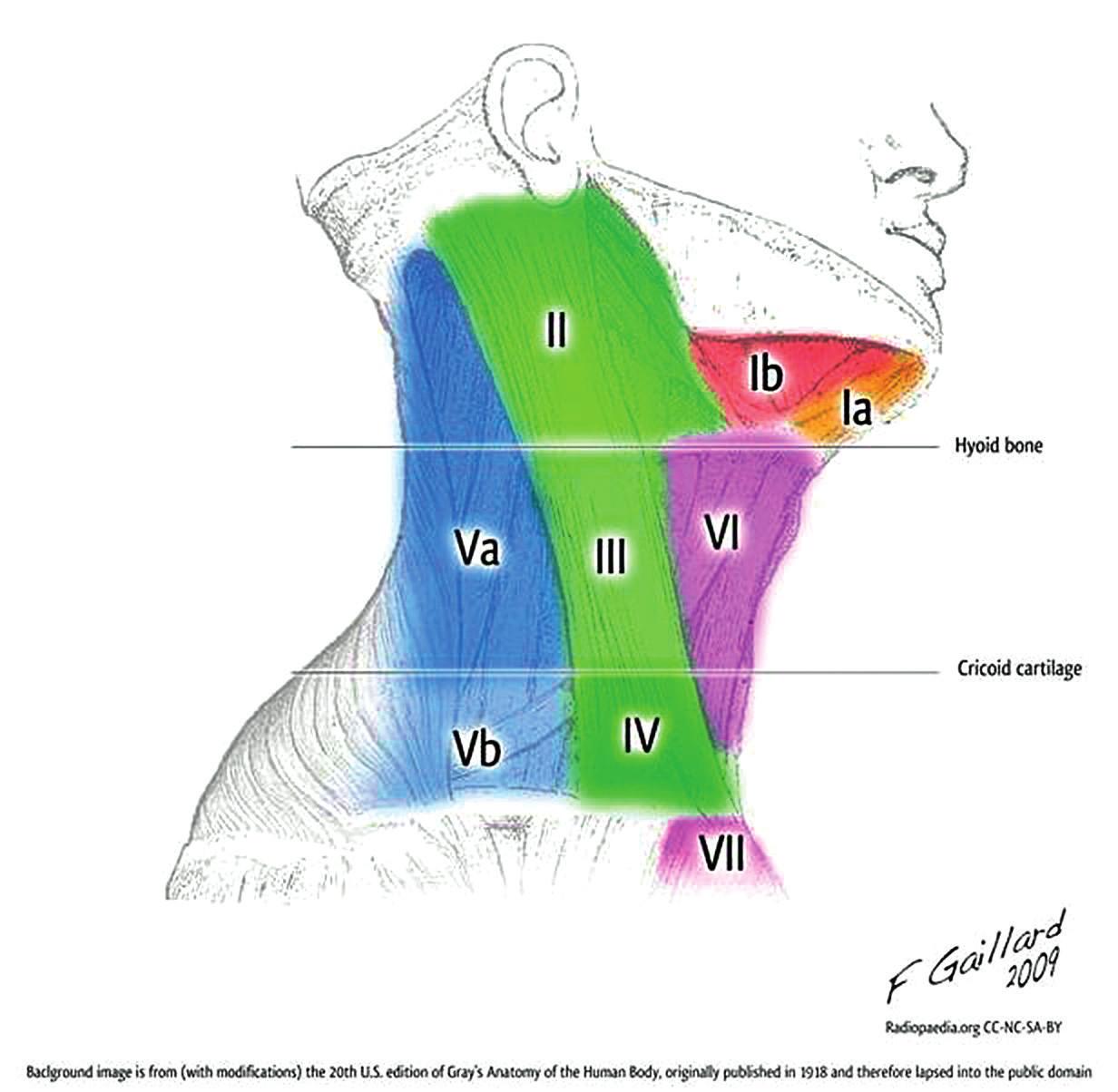 Priestory krku a horného mediastína, anatomicko- -klinické oblasti I-VII (Case courtesy of A. Prof Frank Gaillard, Radiopaedia. org).