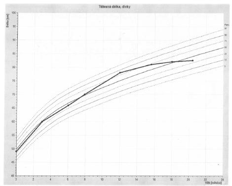 Percentilový graf tělesné délky (vytvořeno programem RustCZ).