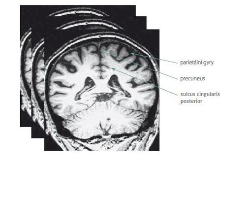 Ukázka tří skórovaných struktur parietálního laloku na jednom vybraném koronárním řezu z mnoha hodnocených T1 vážených snímků.<br> Fig. 1. Example of three rated parietal lobe structures on one selected coronary slice from many T1 weighted images.