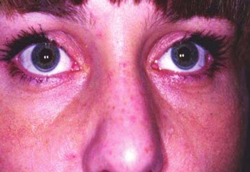 Arcus lipoides corneae obou očí (z archivu Centra preventivní kardiologie III. interní kliniky VFN v Praze)