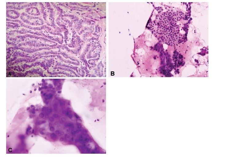 """Porovnání peroperační """"scrape"""" cytologie a kryostatového histologického řezu. (A) Ačkoli v některých případech mohou být jaderné znaky papilárního karcinomu přítomny i v kryostatových řezech (HE, 200x), (B, C) v peroperačních cytologických preparátech získaných seškrabem tkáně z řezu nádorem jsou obvykle výrazněji vyjádřena opticky prázdná jádra, jaderné pseudoinkluze i jaderné zářezy (B, HE, 200x; C, HE, 400x)."""