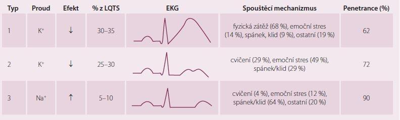 Nejčastější typy syndromu dlouhého QT a jejich EKG manifestace. Upraveno dle [5].