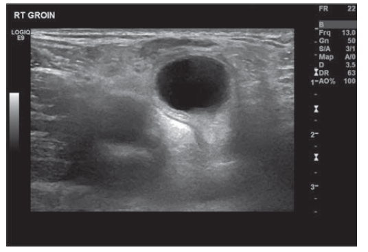 Ultrazvuk pravé kyčle zobrazující cystu<br>