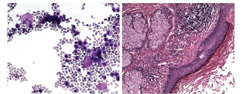 Koetánní teratom – korelace cytologického a histologického obrazu. V cytologickém obraze směs zánětlivých buněk, dermálních elementů, dlaždicových epitelií a bezjaderných skvam. MGG, 200x. V histologickém obraze struktury dermoidní cysty. HE, 200x.