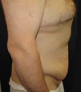 Lower body lifting – pohled z boku předoperačně