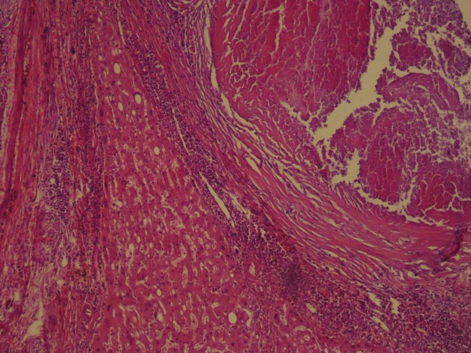Histopatologické vyšetrenie Na obrázku vidno parenchým pečene a časť pomerne dobre ohraničeného ložiska s centrálnou kazeóznou nekrózou. Na periférii nekrózy je epiteloidný lem s výraznejšou lymfocytárnou reakciou (zväčšenie 20x, farbenie hematoxylínom a eozínom).<br> Fig. 6: Hematoxylin Eozin stain The picture shows the parenchymal liver and part of a relatively well-defi ned bearing with central caseous necrosis. On the periphery of necrosis, there is an epitheloid head with more pronounced lymphocyte reaction (enlargement 20x).
