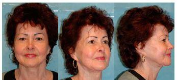 Obr. 6 Pacientka 12 let po operaci: čelní, šikmý a boční pohled. Patrný přetrvávající výrazný efekt operačního výkonu.