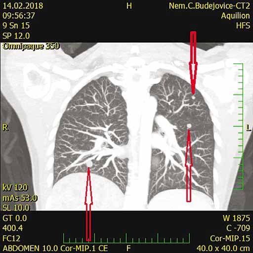 CT s nálezom pľúcnych metastáz (šípky).<br>
