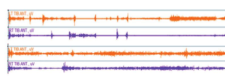 Variabilní zapojení m. tibialis anterior 1. a 3. intervence dřepu Wall Sit během interního zaměření pozornosti.