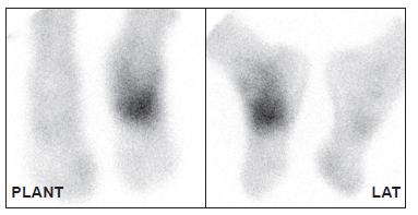 Obraz druhé fáze ukazuje zvýšené tkáňové prokrvení ve stejné oblasti, kde je zvýšený průtok krve. Stejný pacient jako na Obr. 1.