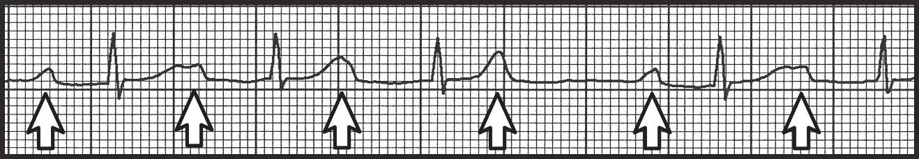 AV blokáda 2. stupně Wenckebachova typu. Detail svodu II, kde dochází k postupnému prodlužování PR intervalu až do výpadku převodu na komory a vzniku AV blokády.