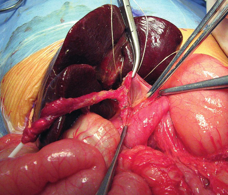 Otvorená operácia vrodenej cystickej malformácie žlčových ciest.<br> Fig. 7. Open surgery of congenital biliary cystic malformation.
