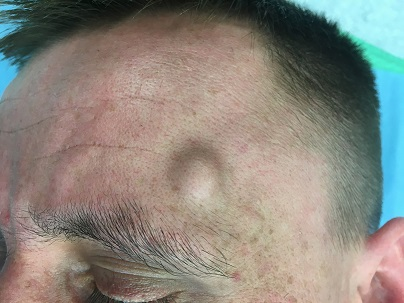 Předoperační fotografie, v čelní krajině vlevo patrná podkožní rezistence.<br>