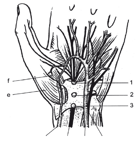 Schéma karpálního tunelu: 1,2,3 – úžiny v různých místech pod ligamentu carpi