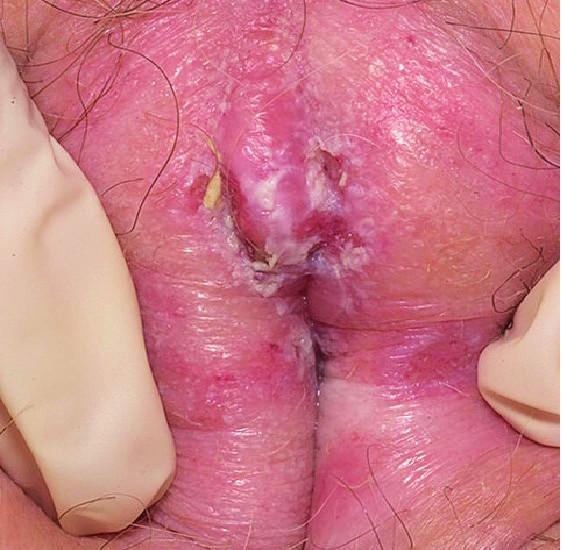 Lichen sclerosus (foto autor). Projevuje se oválnými makulopapulami se svraštělým povrchem a ztluštěním horní vrstvy kůže. Výsev je spojen se svěděním, rozvojem ragád a erozí s rizikem stenózy poševního introitu. S tím souvisí dyspareunie, dysurie a nemožnost pohlavního styku.