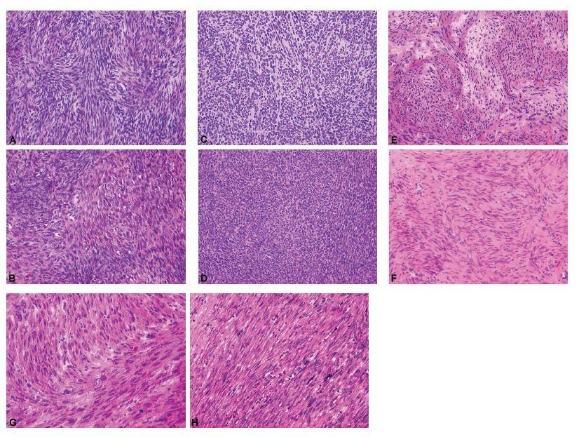 Fascikulárně stavěné gonadostromální a mezenchymální nádory ovaria jako diferenciálně diagnostický problém při peroperačním vyšetření.<br> A – celulární fibrom (peroperační vyšetření, HE, 200x); B – celulární fibrom (definitivní vyšetření, HE, 200x); C – nádor z buněk granulózy, adultní typ, sarkomatoidní varianta (peroperační vyšetření, HE, 200x); D – nádor z buněk granulózy, adultní typ, sarkomatoidní varianta (definitivní vyšetření, HE, 200x); E – leiomyom (peroperační vyšetření, HE, 200x); F – leiomyom (definitivní vyšetření, HE, 200x); G – leiomyosarkom (peroperační vyšetření, HE, 200x); H – leiomyosarkom (definitivní vyšetření, HE, 200x)