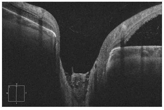 HD-OCT: Lineární vertikální transpapilární sken levého oka, rozsáhlá JTZN překryta tkání střední reflektivity. Při horním okraji navazující serózní ablace neuroretiny s akumulací tekutiny subretinálně