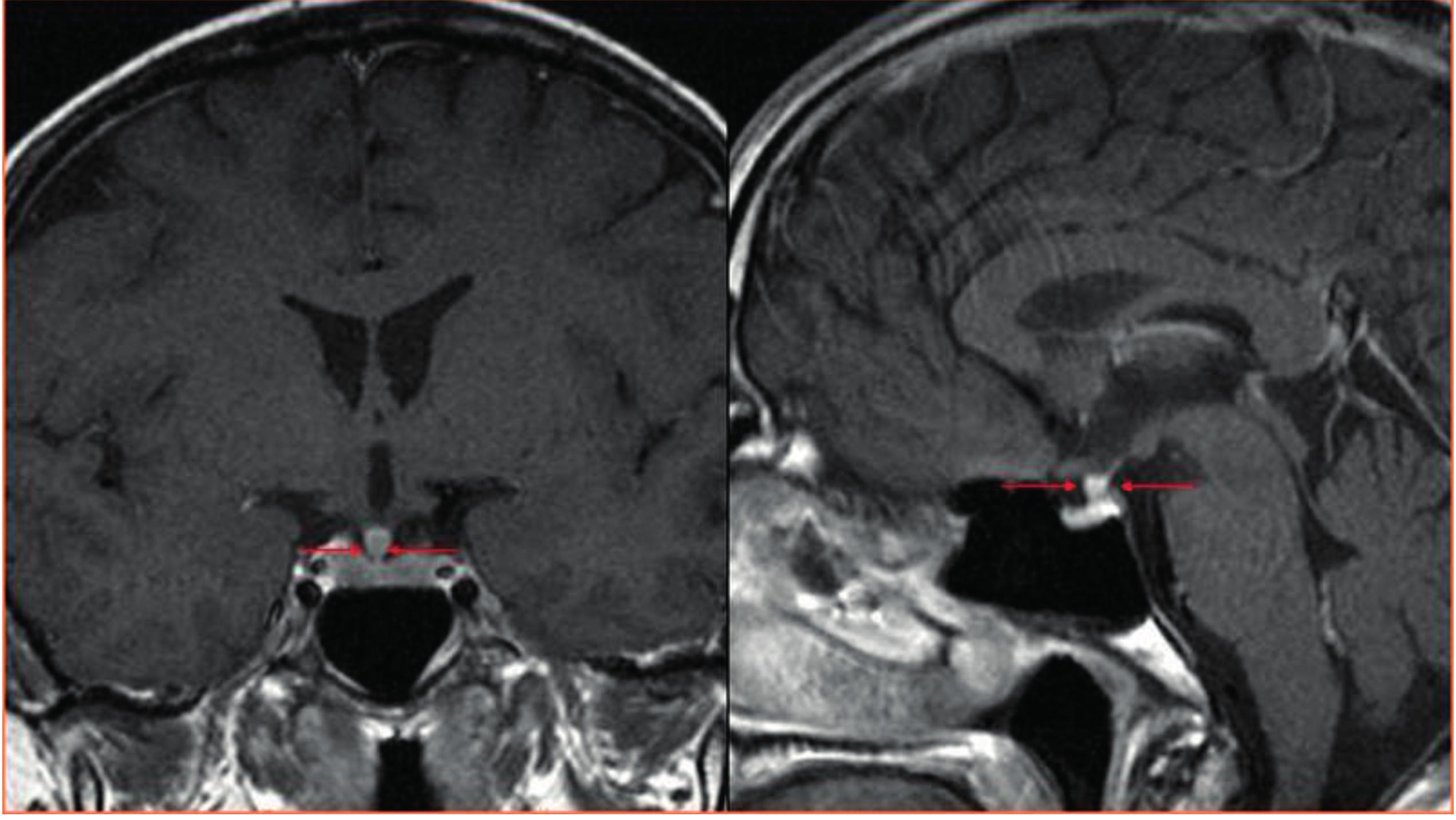 CT zobrazení mozku<br> Šipky ukazují zesílení stopky hypofýzy u pacienta s Erdheimovou-Chesterovou nemocí, tedy stejné postižení k jakému dochází u pacientů s histiocytózou z Langerhansových buněk. Tato infiltrace má za následek diabetes insipidus.