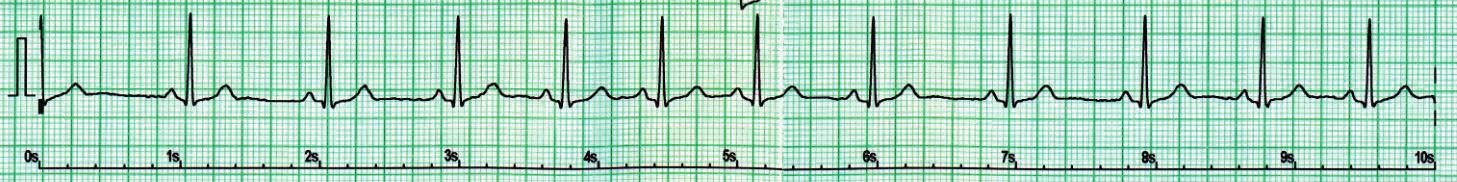 Respirační sinusová arytmie