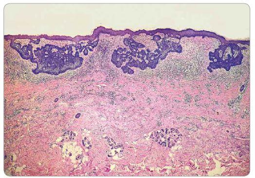 Histologický obraz superficiálneho bazocelulárneho karcinómu.