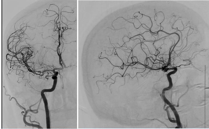 a 5 Kontrolní angiografie s plným obnovením toku (TICI 3) v zadopřední a boční projekci