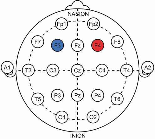 Znázornění protokolu k terapii bažení v systému 10–20. Anoda (červená) nad pravým dorzolaterálním prefrontálním kortexem, katoda (modrá) nad levým dorsolaterálním prefrontálním kortexem.<br> Fig. 9. 10–20 representations of the therapeutic protocol for craving treatment. Anode (red) over the right dorsolateral prefrontal cortex, cathode (blue) over the left dorsolateral prefrontal cortex.
