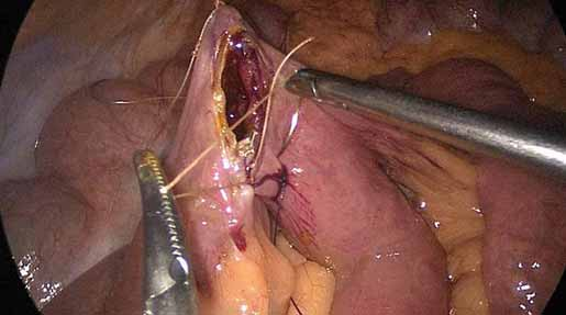 Šití jejun-oileální anastomózy. Fig. 2. Jejuno-ileal anastomosis suture.
