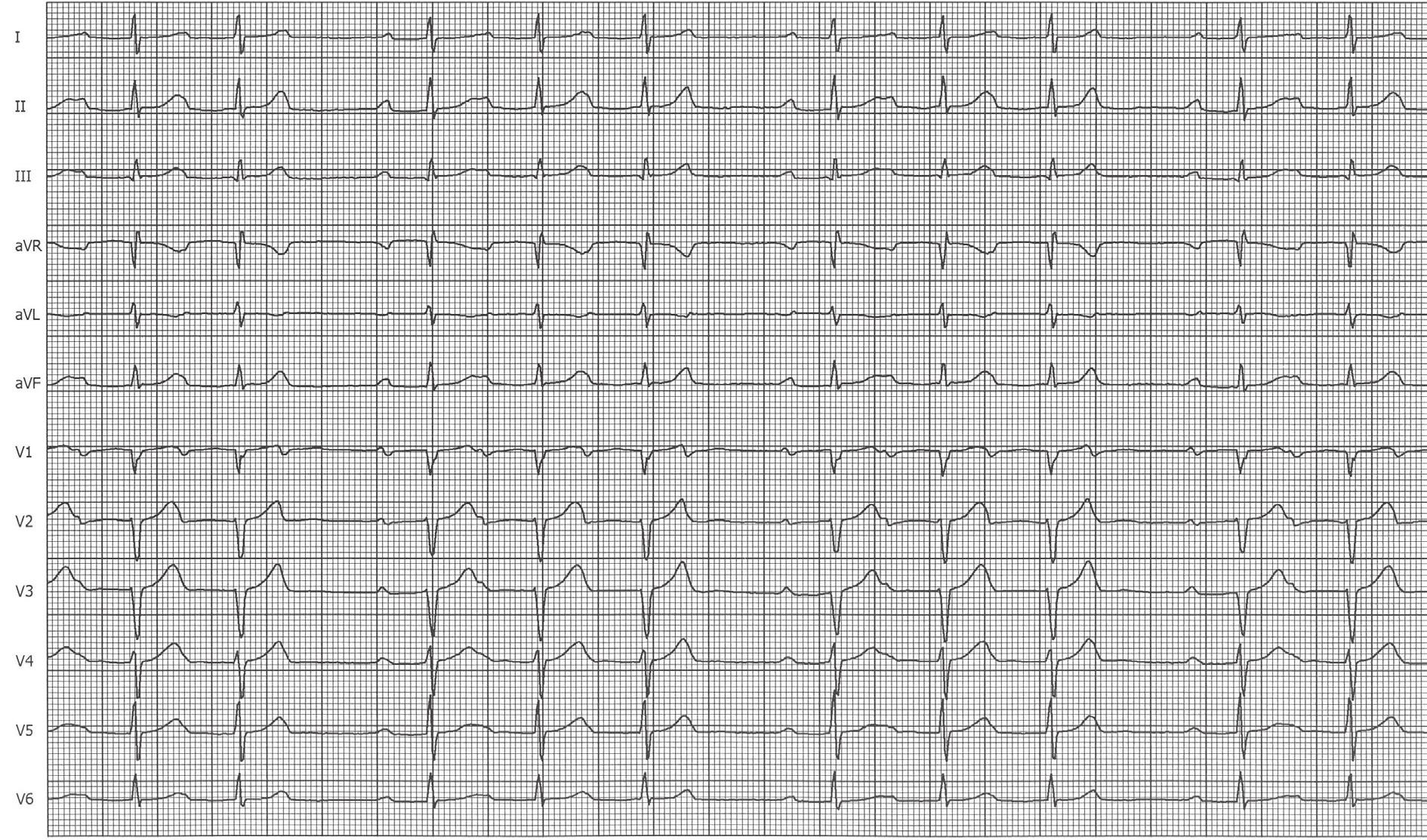 EKG křivka po provedené ablaci